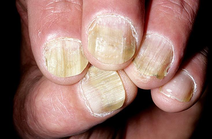 Грибок ногтей на руках удаление ногтя