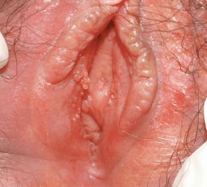 Вакцины против папилломавируса инструкция