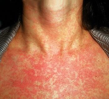 Боль в шее отдающая в левую руку лечение